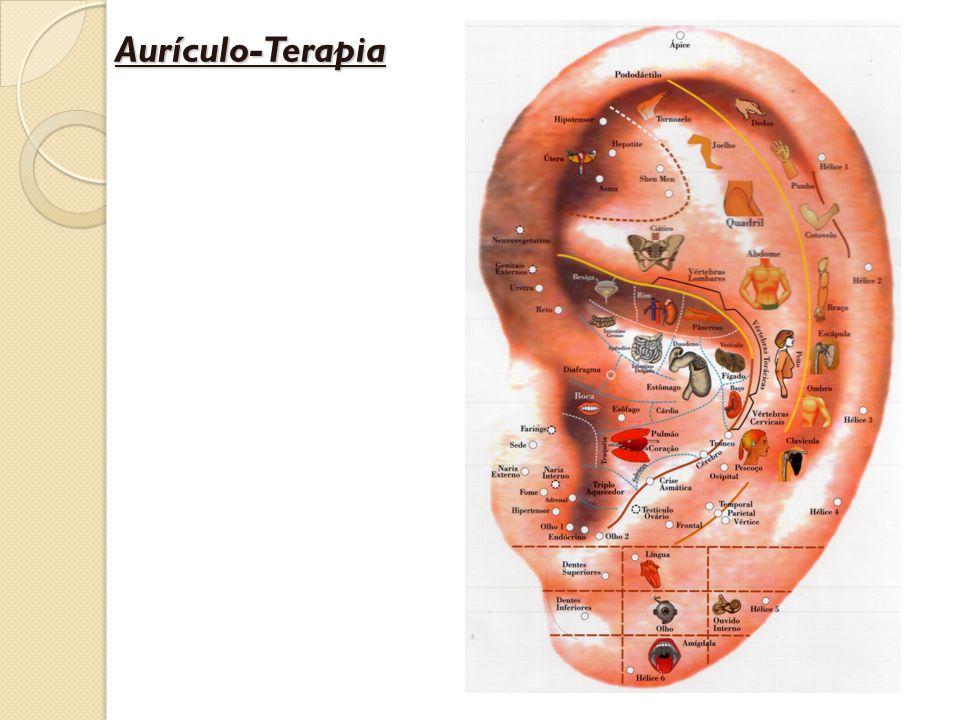 Aurículo-Terapia