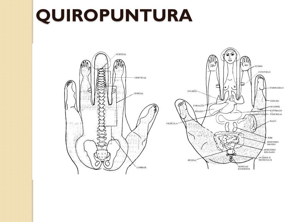 QUIROPUNTURA
