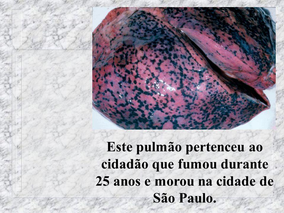 Este pulmão pertenceu ao cidadão que fumou durante 25 anos e morou na cidade de São Paulo.