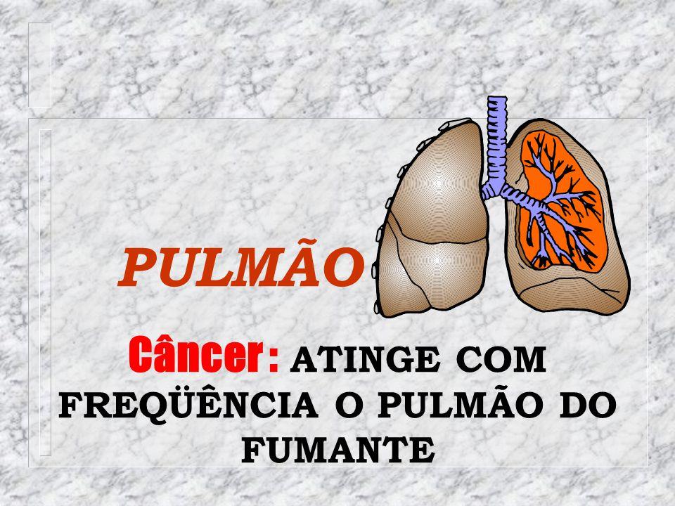 PULMÃO Câncer : ATINGE COM FREQÜÊNCIA O PULMÃO DO FUMANTE