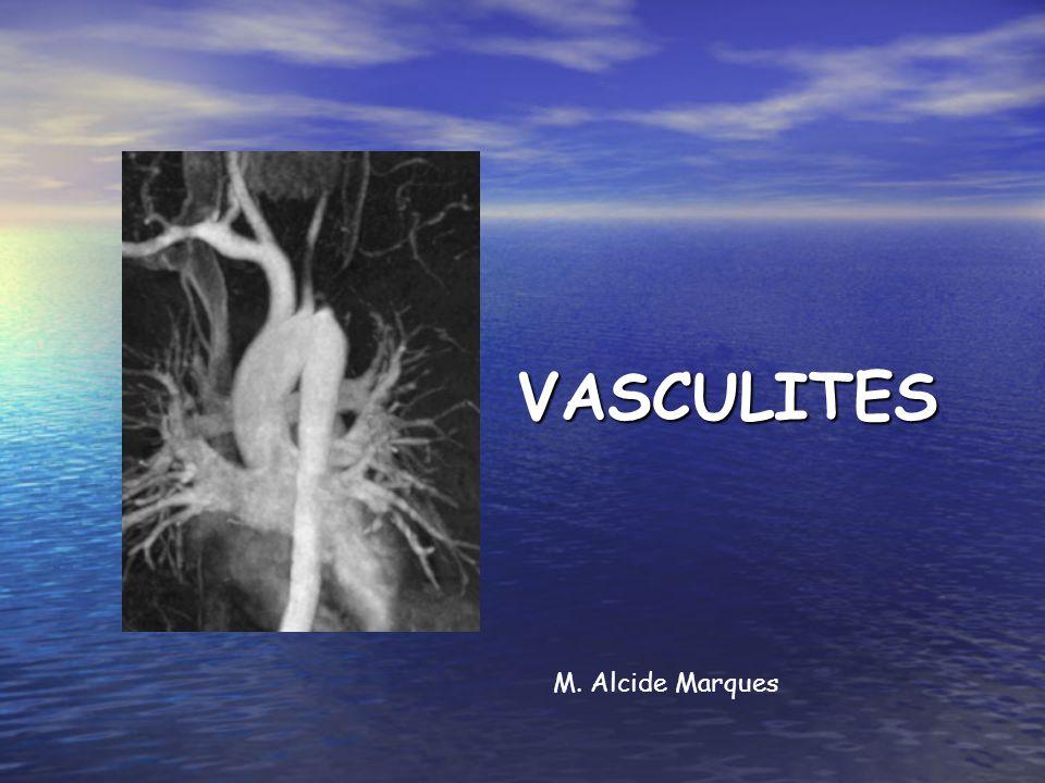VASCULITES Inflamação dos vasos Inflamação dos vasos Primárias (Causa desconhecida) Primárias (Causa desconhecida) Secundárias (Associadas a outras doenças ou exposições) Secundárias (Associadas a outras doenças ou exposições)