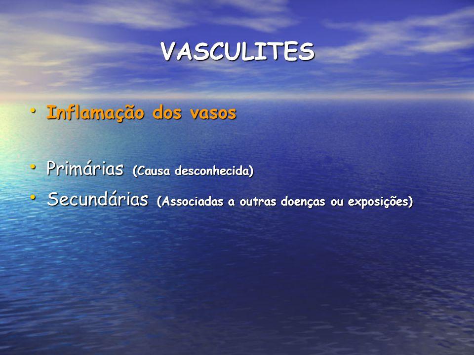 VASCULITES Inflamação dos vasos Inflamação dos vasos Primárias (Causa desconhecida) Primárias (Causa desconhecida) Secundárias (Associadas a outras do