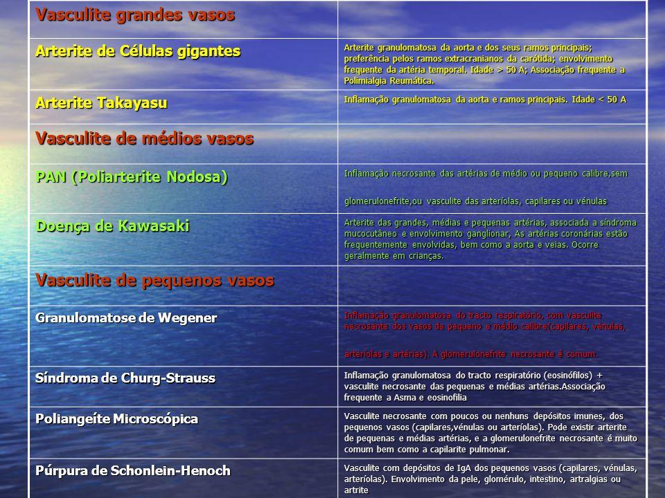 Vasculite Crioglobulinémica Essencial Vasculite com depósitos imunes de crioglobulinas dos pequenos vasos (capilares, vénulas ou arteríolas) associada a crioglobulinas no soro.