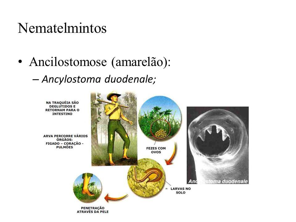 Nematelmintos Ancilostomose (amarelão): – Ancylostoma duodenale;
