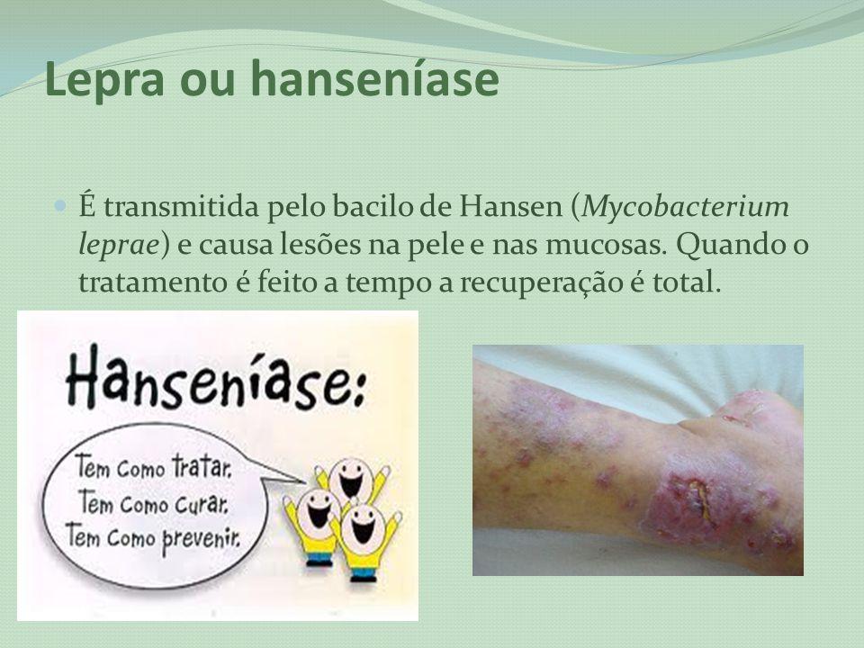 Lepra ou hanseníase É transmitida pelo bacilo de Hansen (Mycobacterium leprae) e causa lesões na pele e nas mucosas. Quando o tratamento é feito a tem