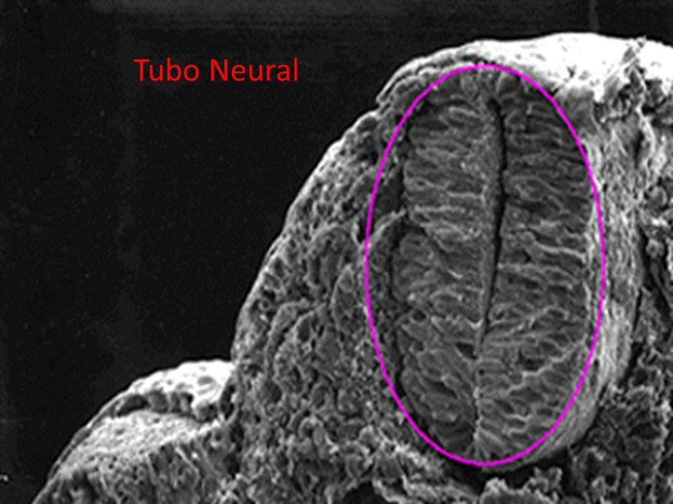 02/07/201230 Tubo Neural