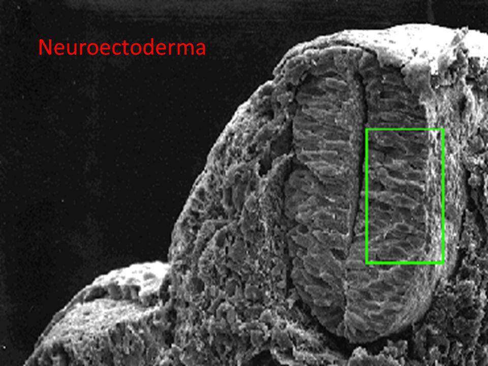 02/07/201231 Neuroectoderma
