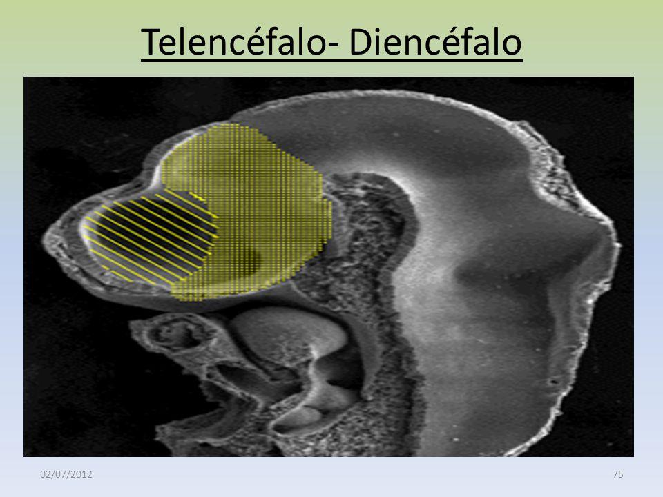 Telencéfalo- Diencéfalo 02/07/201275