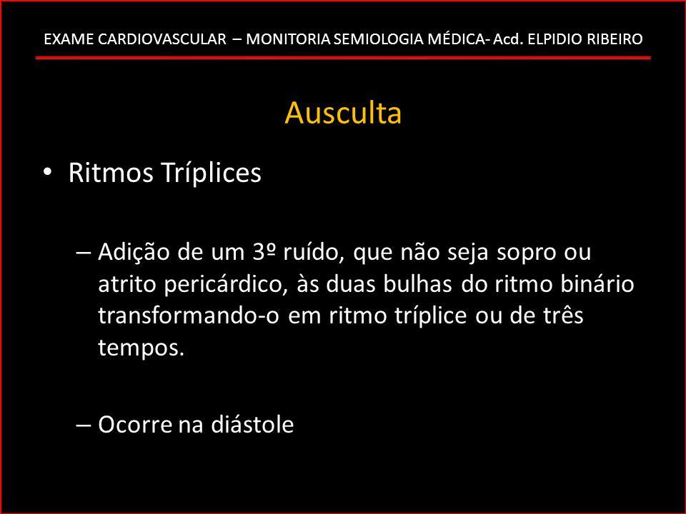 EXAME CARDIOVASCULAR – MONITORIA SEMIOLOGIA MÉDICA- Acd. ELPIDIO RIBEIRO Ausculta Ritmos Tríplices – Adição de um 3º ruído, que não seja sopro ou atri