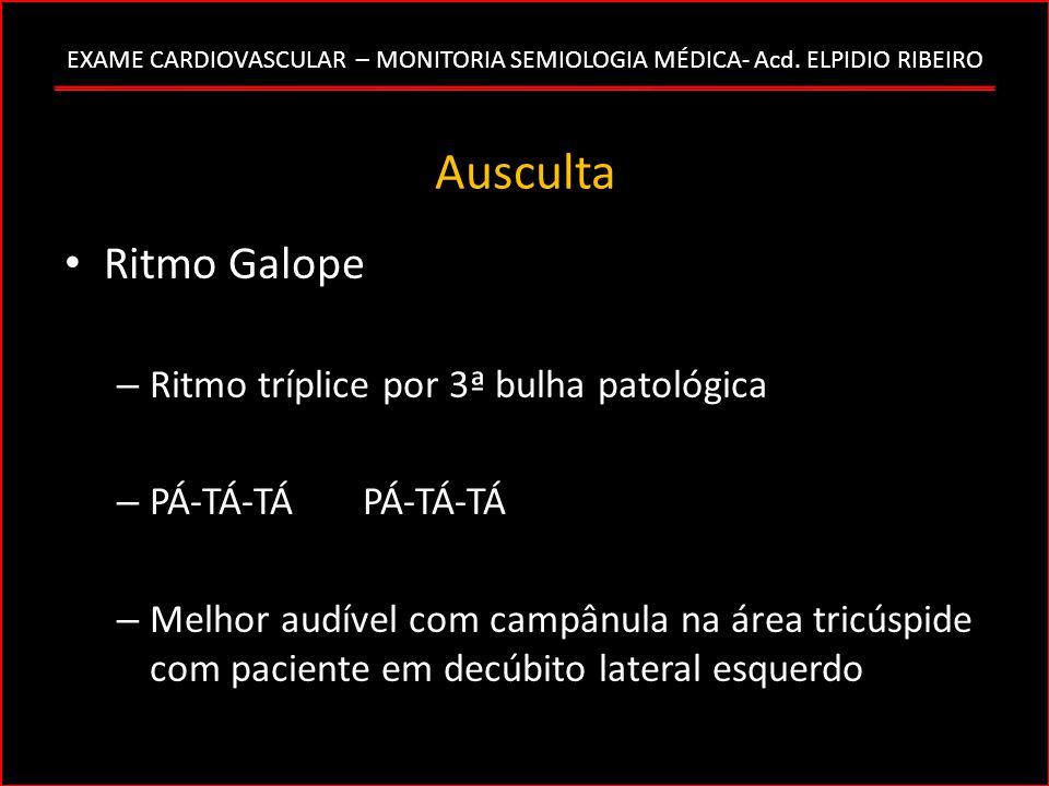 EXAME CARDIOVASCULAR – MONITORIA SEMIOLOGIA MÉDICA- Acd. ELPIDIO RIBEIRO Ausculta Ritmo Galope – Ritmo tríplice por 3ª bulha patológica – PÁ-TÁ-TÁ PÁ-