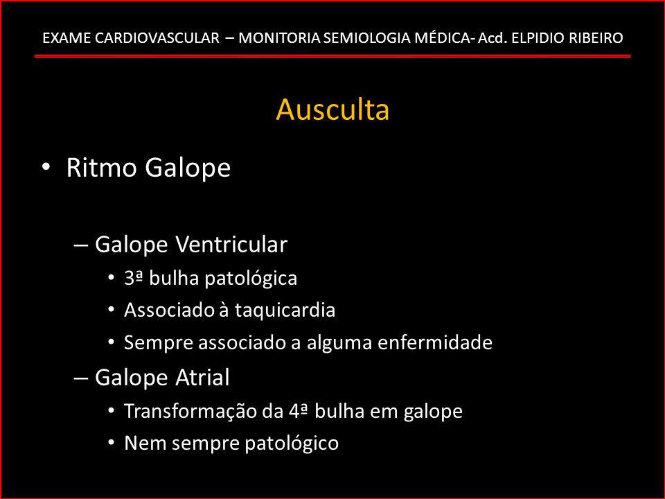 EXAME CARDIOVASCULAR – MONITORIA SEMIOLOGIA MÉDICA- Acd. ELPIDIO RIBEIRO Ausculta Ritmo Galope – Galope Ventricular 3ª bulha patológica Associado à ta