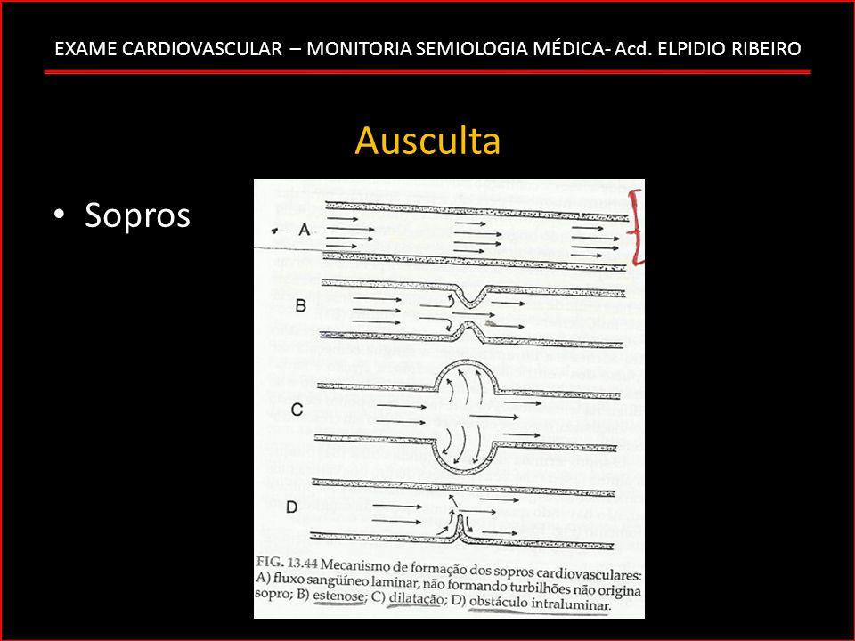 EXAME CARDIOVASCULAR – MONITORIA SEMIOLOGIA MÉDICA- Acd. ELPIDIO RIBEIRO Ausculta Sopros