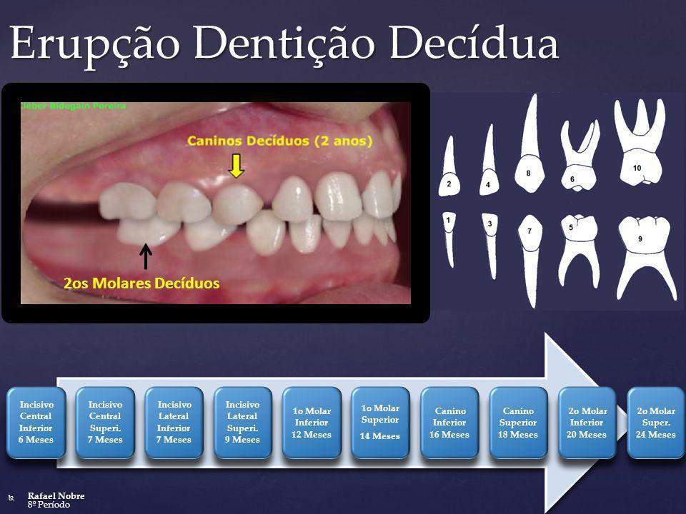 Erupção Dentição Decídua Incisivo Central Inferior 6 Meses Incisivo Central Superi. 7 Meses Incisivo Lateral Inferior 7 Meses Incisivo Lateral Superi.