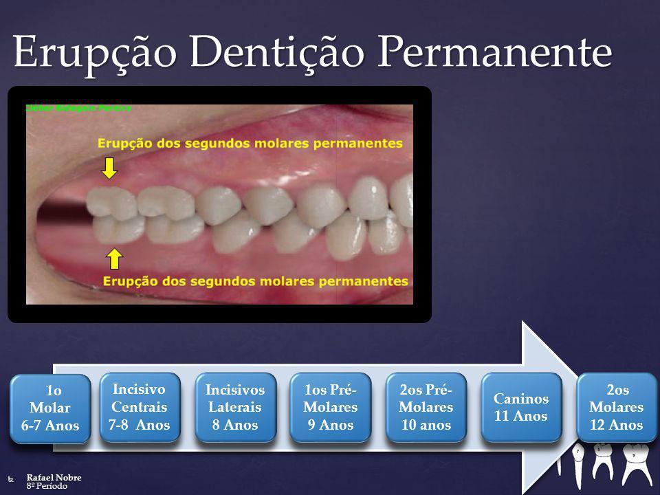 Erupção Dentição Permanente 1o Molar 6-7 Anos Incisivo Centrais 7-8 Anos Incisivos Laterais 8 Anos 1os Pré- Molares 9 Anos 2os Pré- Molares 10 anos Ca