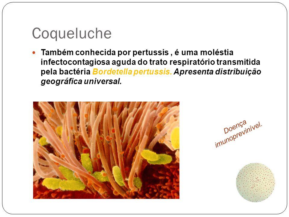 Coqueluche Também conhecida por pertussis, é uma moléstia infectocontagiosa aguda do trato respiratório transmitida pela bactéria Bordetella pertussis