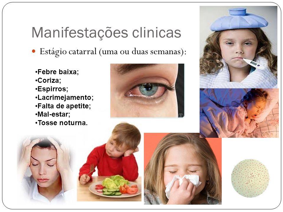 Manifestações clinicas Estágio catarral (uma ou duas semanas): Febre baixa; Coriza; Espirros; Lacrimejamento; Falta de apetite; Mal-estar; Tosse notur