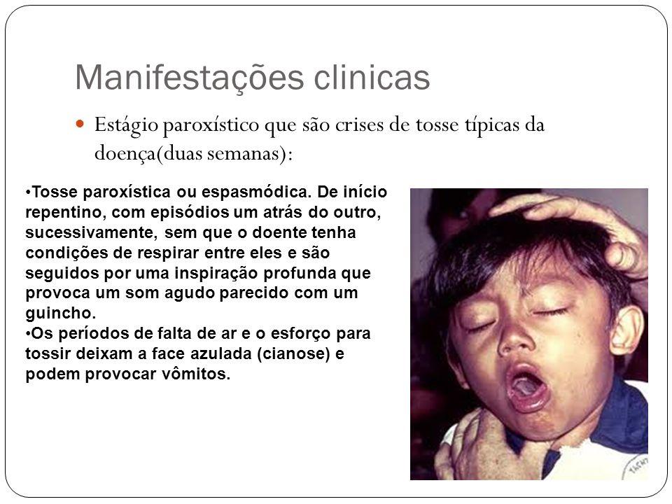 Manifestações clinicas Estágio paroxístico que são crises de tosse típicas da doença(duas semanas): Tosse paroxística ou espasmódica. De início repent