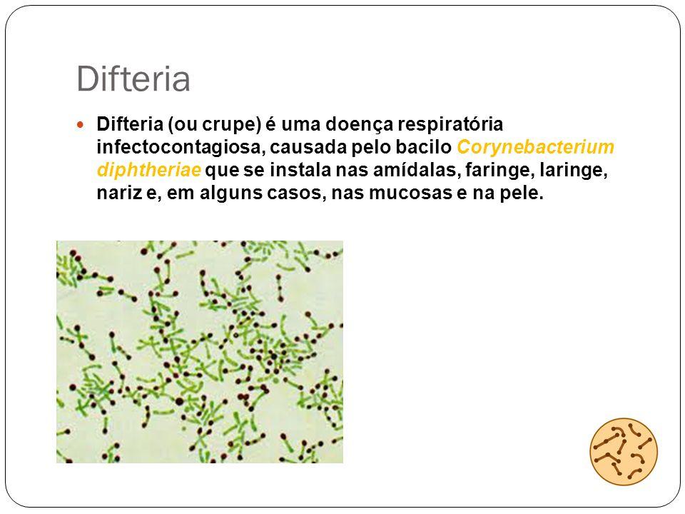 Difteria Difteria (ou crupe) é uma doença respiratória infectocontagiosa, causada pelo bacilo Corynebacterium diphtheriae que se instala nas amídalas,