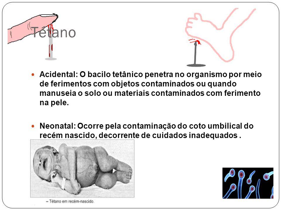 Tétano Acidental: O bacilo tetânico penetra no organismo por meio de ferimentos com objetos contaminados ou quando manuseia o solo ou materiais contam