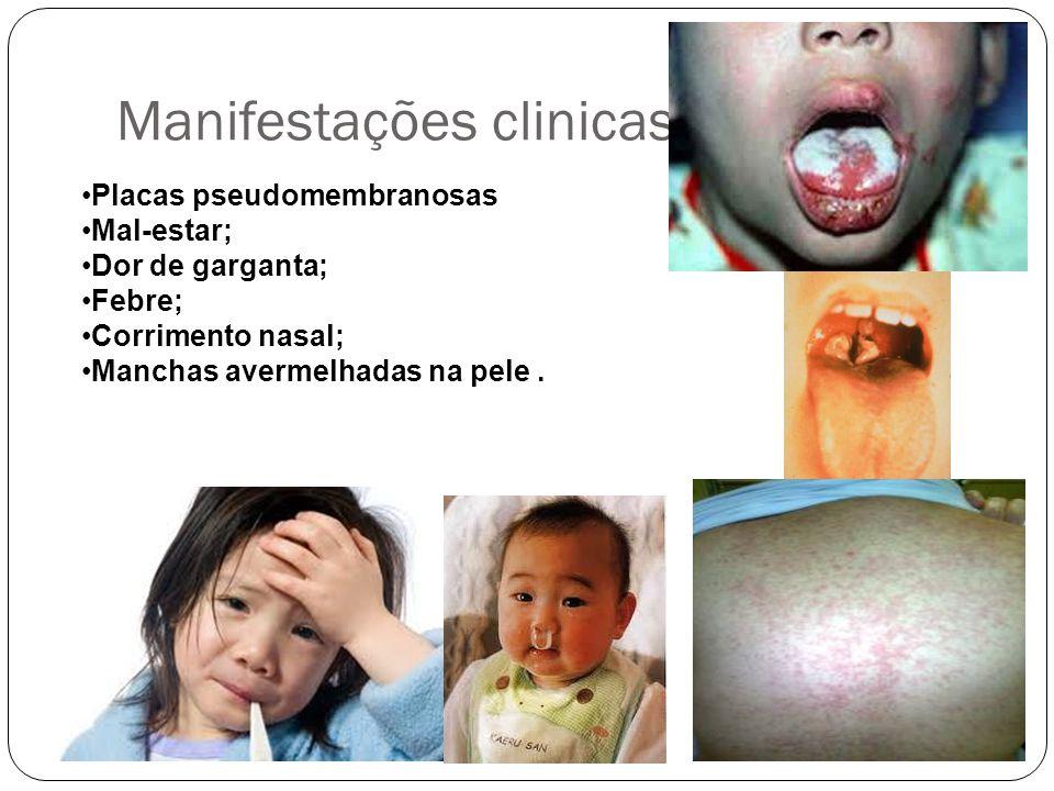 Manifestações clinicas Placas pseudomembranosas Mal-estar; Dor de garganta; Febre; Corrimento nasal; Manchas avermelhadas na pele.