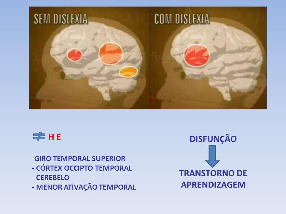 H E -GIRO TEMPORAL SUPERIOR - CÓRTEX OCCIPTO TEMPORAL - CEREBELO - MENOR ATIVAÇÃO TEMPORAL DISFUNÇÃO TRANSTORNO DE APRENDIZAGEM