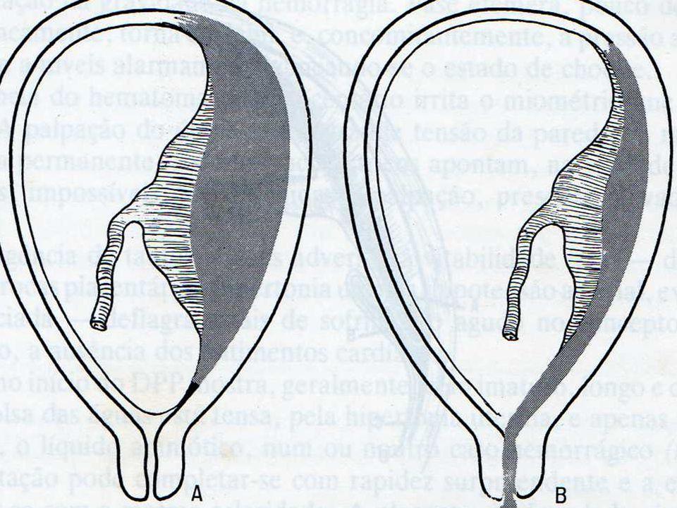Idade (>40 anos); Multiparidade; Danos endometriais/miometriais; Endometrites; Placentas grandes; Tabagismo.