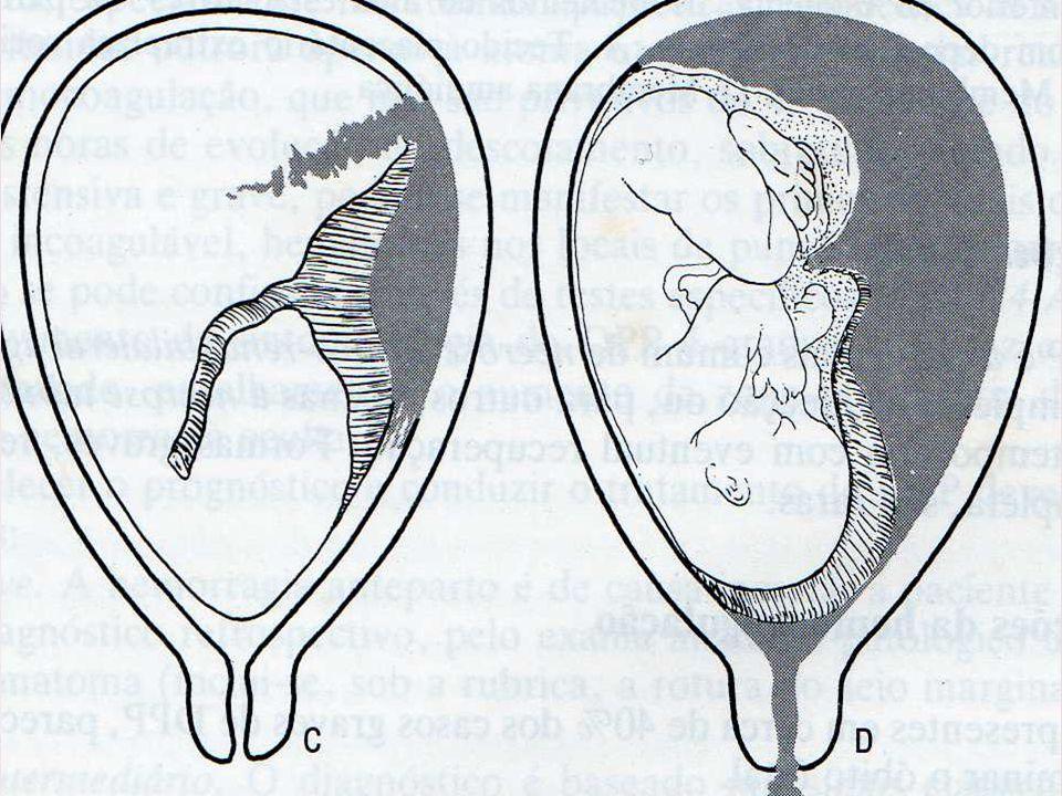 Decidualização pobre do útero; Alterações inflamatórias ou atróficas do endométrio; Vascularização defeituosa; Hipertrofia compensatória.