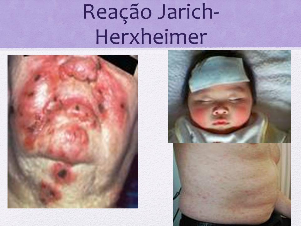 Reação Jarich- Herxheimer