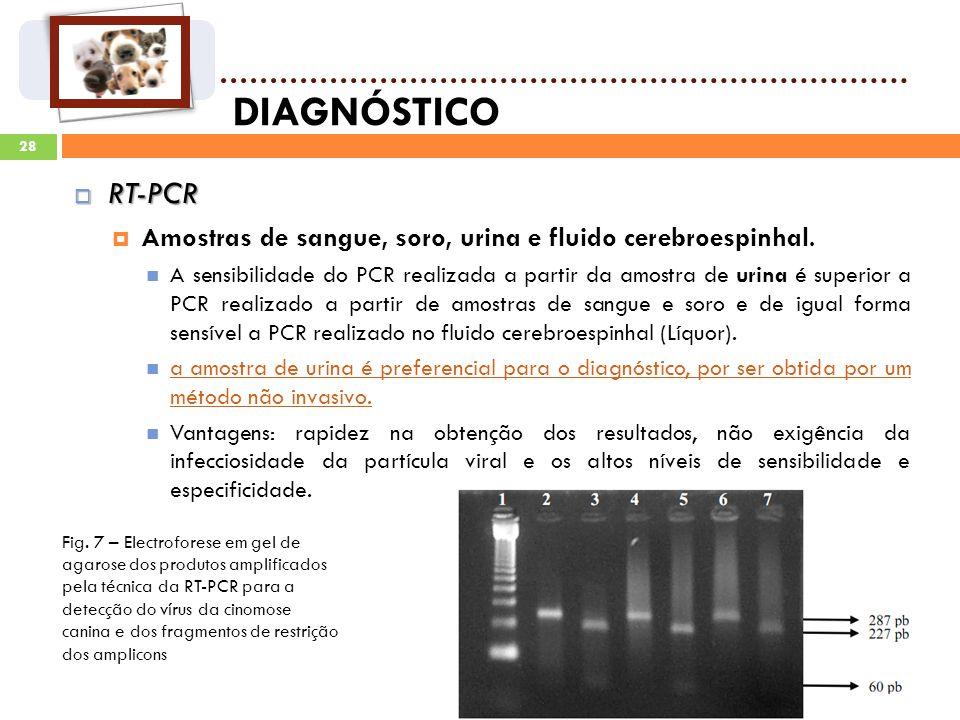 28 DIAGNÓSTICO RT-PCR RT-PCR Amostras de sangue, soro, urina e fluido cerebroespinhal.