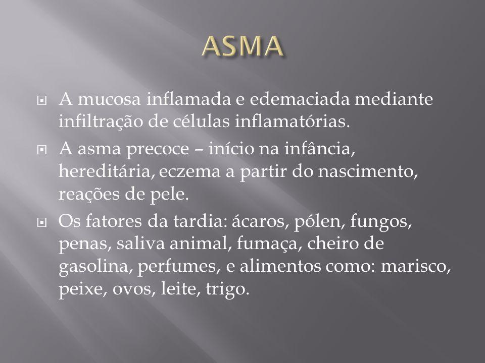 A mucosa inflamada e edemaciada mediante infiltração de células inflamatórias. A asma precoce – início na infância, hereditária, eczema a partir do na