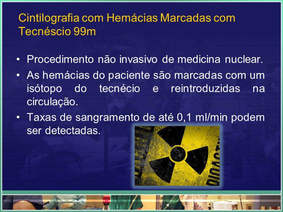 Cintilografia com Hemácias Marcadas com Tecnéscio 99m Procedimento não invasivo de medicina nuclear. As hemácias do paciente são marcadas com um isóto