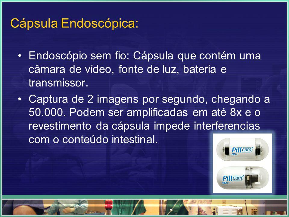 Cápsula Endoscópica: Endoscópio sem fio: Cápsula que contém uma câmara de vídeo, fonte de luz, bateria e transmissor. Captura de 2 imagens por segundo