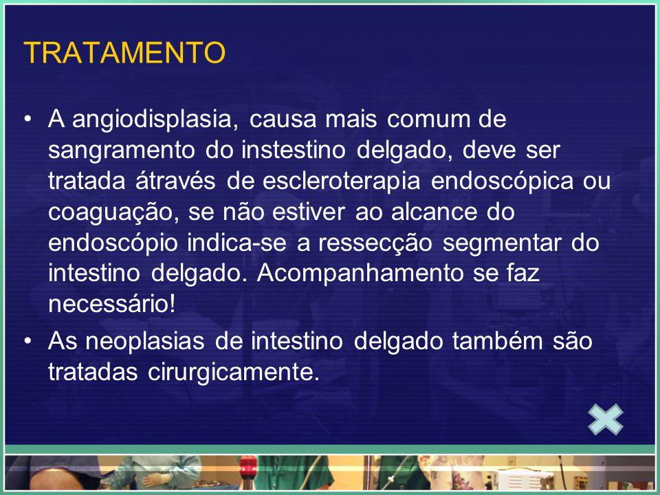 TRATAMENTO A angiodisplasia, causa mais comum de sangramento do instestino delgado, deve ser tratada átravés de escleroterapia endoscópica ou coaguaçã