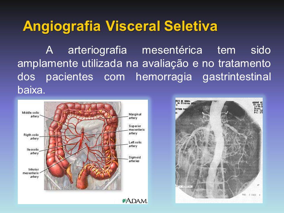 TRATAMENTO Tratamento angiográfico: - Útil em pacientes cujo sangramento é identificado pela angiografia e que apresentam alto risco cirúrgico, ou na tentativa de postergar a cirurgia.