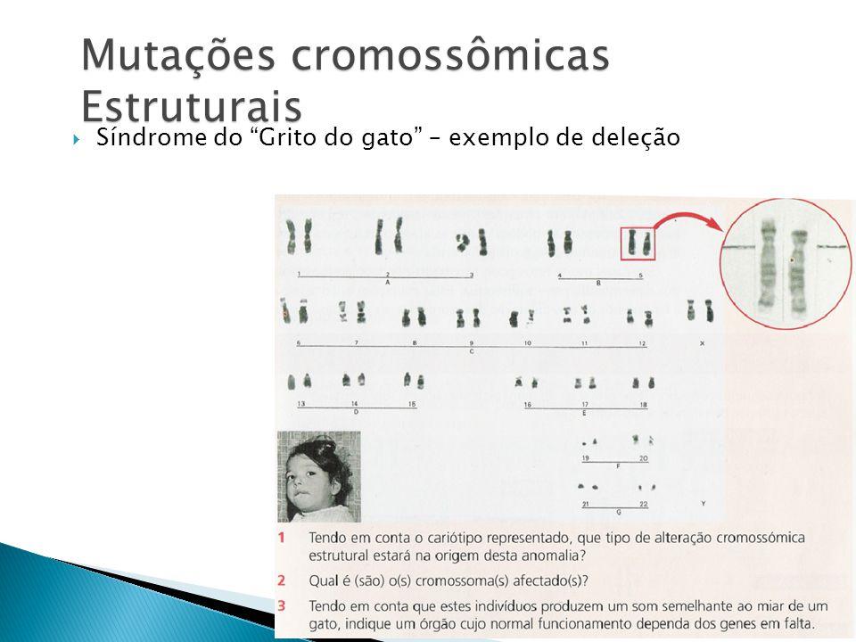 Mutações cromossômicas Estruturais Síndrome do Grito do gato – exemplo de deleção