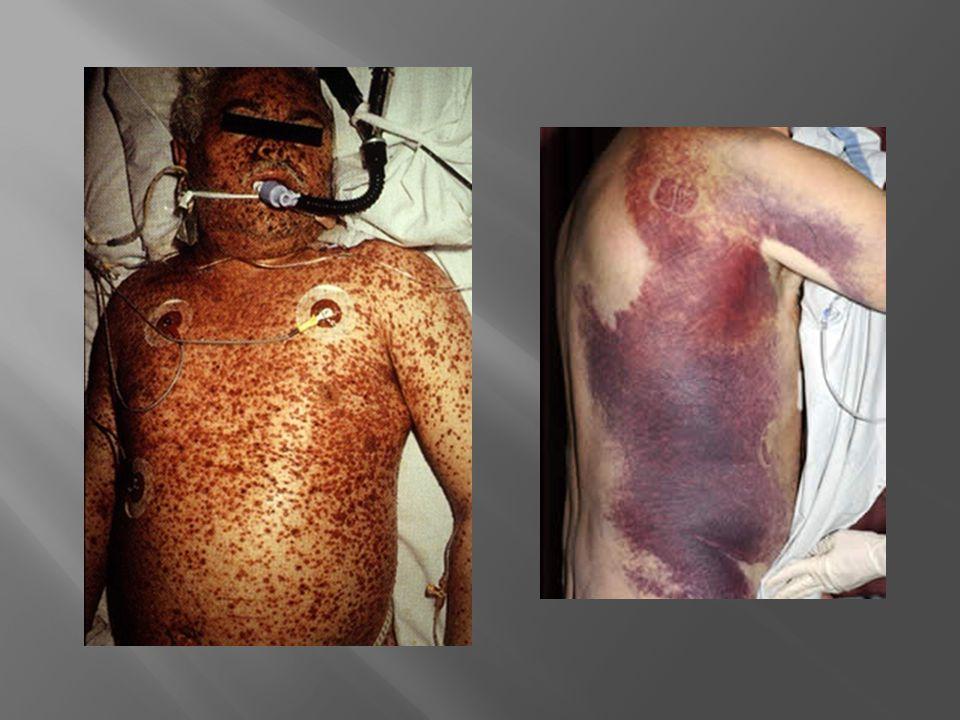 Hemofilia A adquirida Hemofilia A adquirida Epidemiologia: Epidemiologia: Gravidez Gravidez Artrite reumatóide Artrite reumatóide Neoplasias Neoplasias