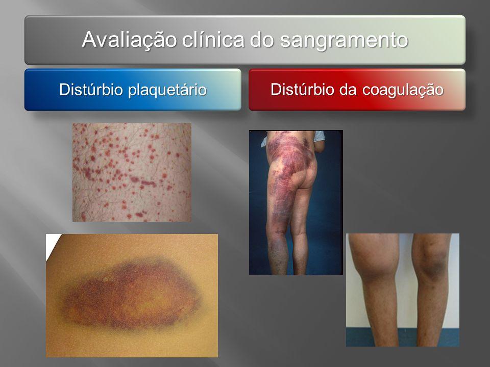 Avaliação clínica do sangramento Distúrbio plaquetário Distúrbio da coagulação
