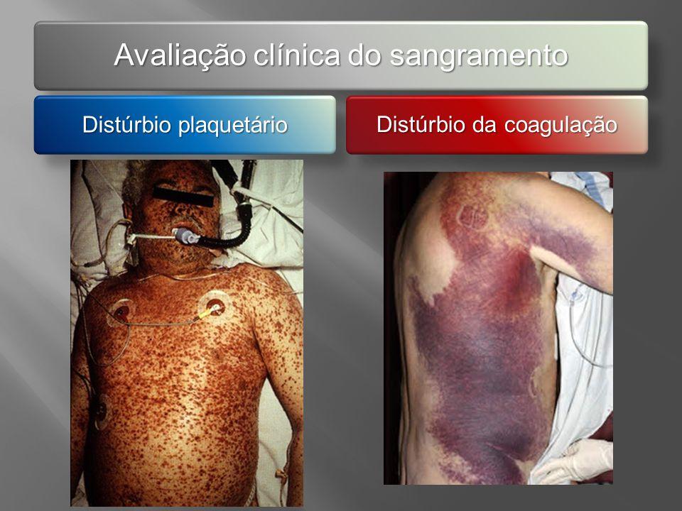 Distúrbio plaquetário Plaquetopenia? Deficiência na agregação plaquetária?