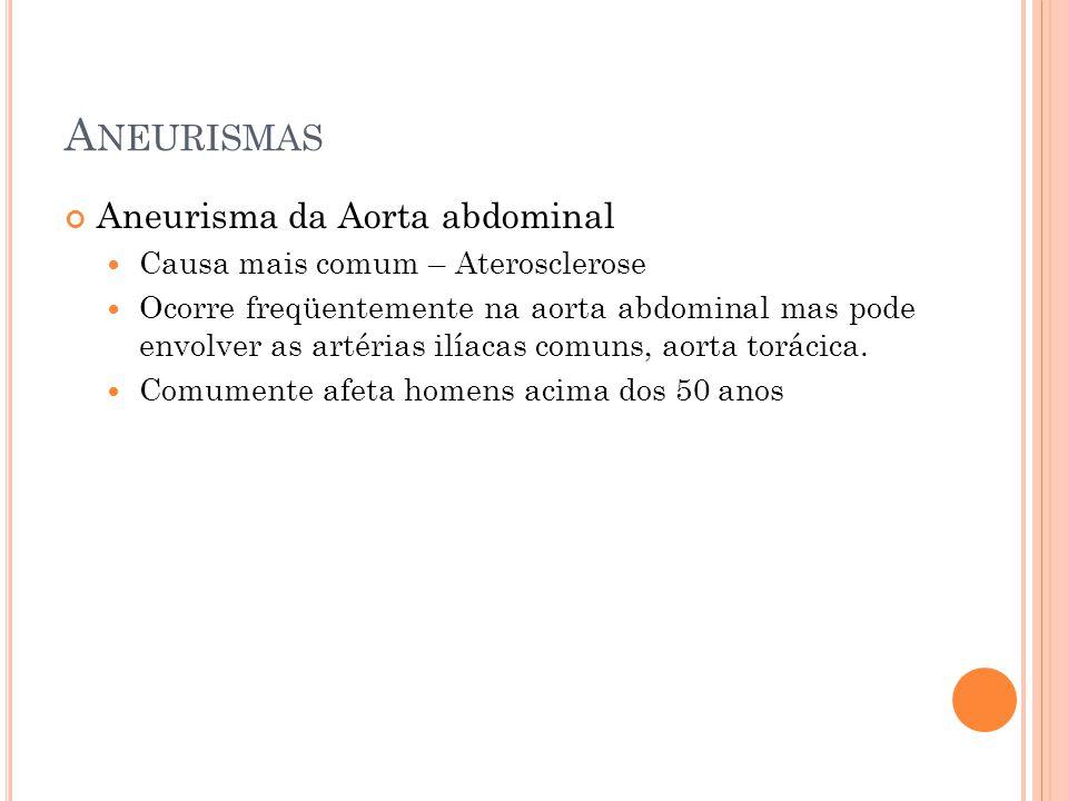A NEURISMAS Aneurisma da Aorta abdominal Causa mais comum – Aterosclerose Ocorre freqüentemente na aorta abdominal mas pode envolver as artérias ilíac