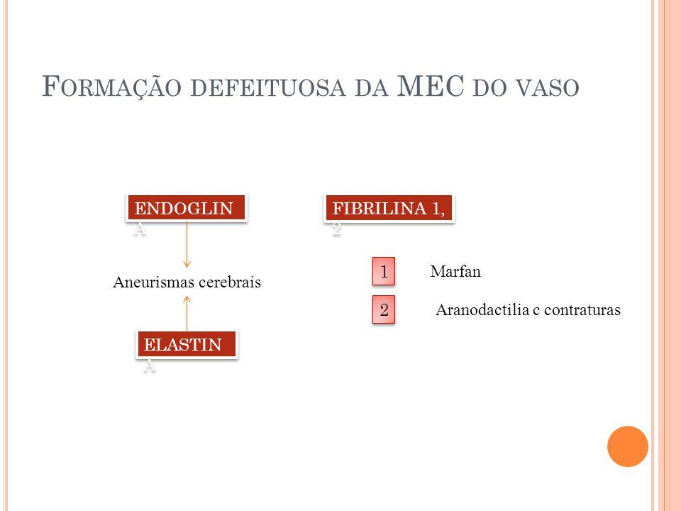 F ORMAÇÃO DEFEITUOSA DA MEC DO VASO ENDOGLIN A FIBRILINA 1, 2 1 1 2 2 Marfan Aranodactilia c contraturas ELASTIN A Aneurismas cerebrais