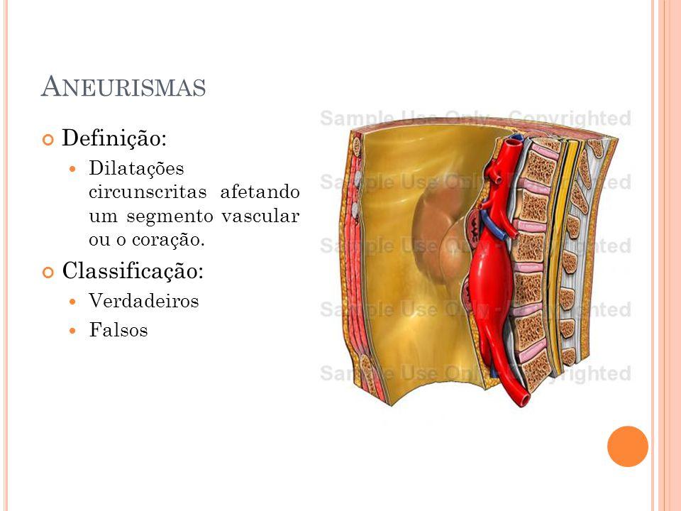 Definição: Dilatações circunscritas afetando um segmento vascular ou o coração. Classificação: Verdadeiros Falsos