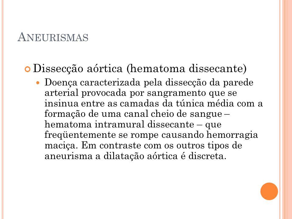 A NEURISMAS Dissecção aórtica (hematoma dissecante) Doença caracterizada pela dissecção da parede arterial provocada por sangramento que se insinua en