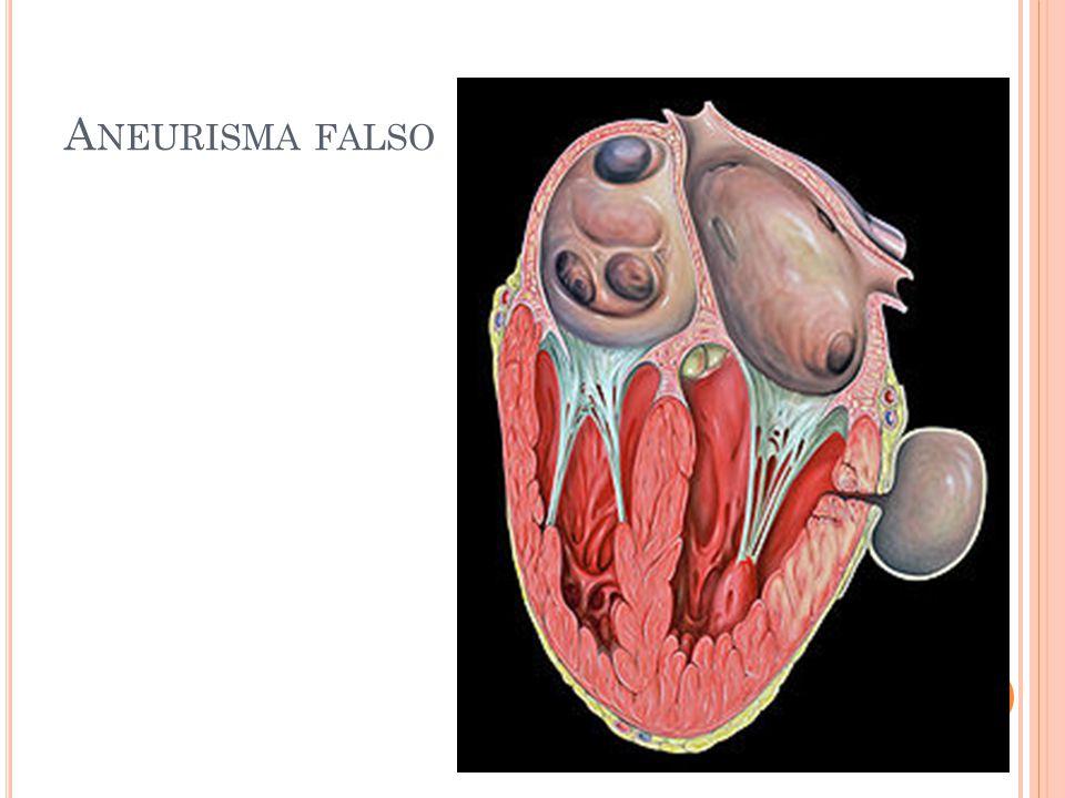 A NEURISMAS Quadro Clínico: as conseqüências clinicas do aneurisma abdominal dependem da localização e do tamanho Ruptura Oclusão do suprimento sangüíneo de outros órgãos Embolia Lesões compressivas de estruturas adjacentes Massa abdominal