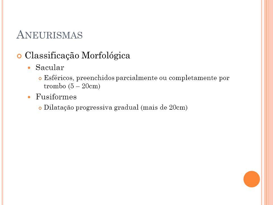 A NEURISMAS Classificação Morfológica Sacular Esféricos, preenchidos parcialmente ou completamente por trombo (5 – 20cm) Fusiformes Dilatação progress