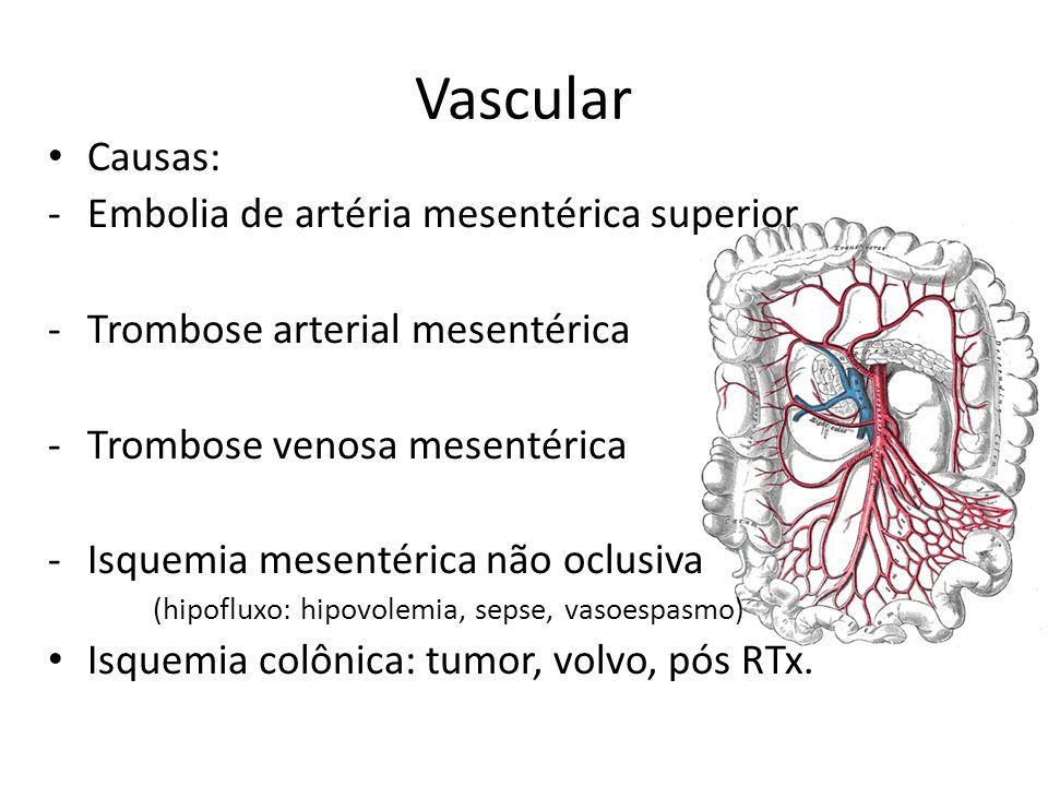 Vascular Causas: -Embolia de artéria mesentérica superior -Trombose arterial mesentérica -Trombose venosa mesentérica -Isquemia mesentérica não oclusi
