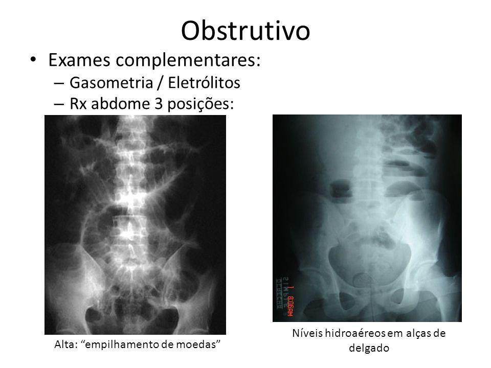 Obstrutivo Baixa: distensão do cólon sem ar em ampola retal Rx torax: pneumoperitôneo