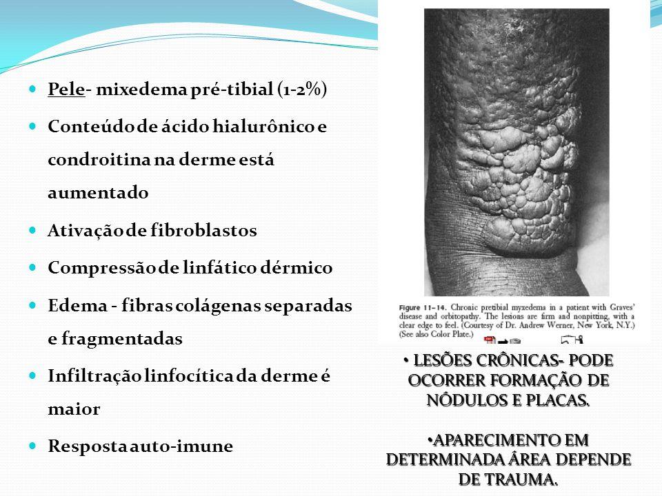 Pele- mixedema pré-tibial (1-2%) Conteúdo de ácido hialurônico e condroitina na derme está aumentado Ativação de fibroblastos Compressão de linfático