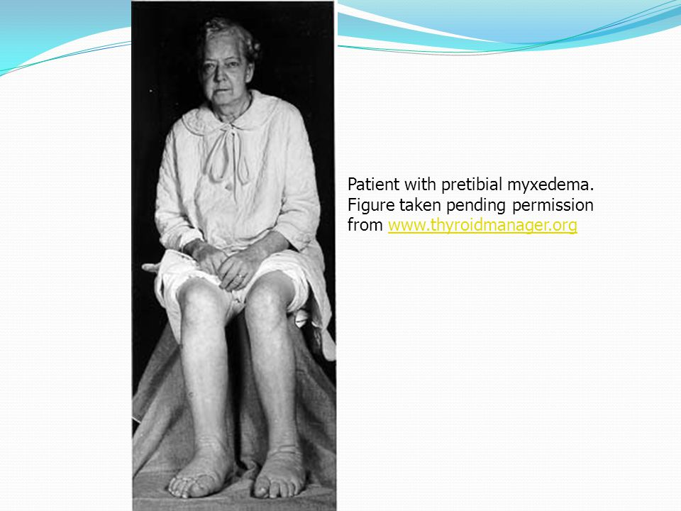 Patient with pretibial myxedema. Figure taken pending permission from www.thyroidmanager.orgwww.thyroidmanager.org