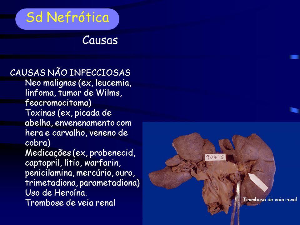 CAUSAS NÃO INFECCIOSAS Neo malignas (ex, leucemia, linfoma, tumor de Wilms, feocromocitoma) Toxinas (ex, picada de abelha, envenenamento com hera e carvalho, veneno de cobra) Medicações (ex, probenecid, captopril, lítio, warfarin, penicilamina, mercúrio, ouro, trimetadiona, parametadiona) Uso de Heroína.
