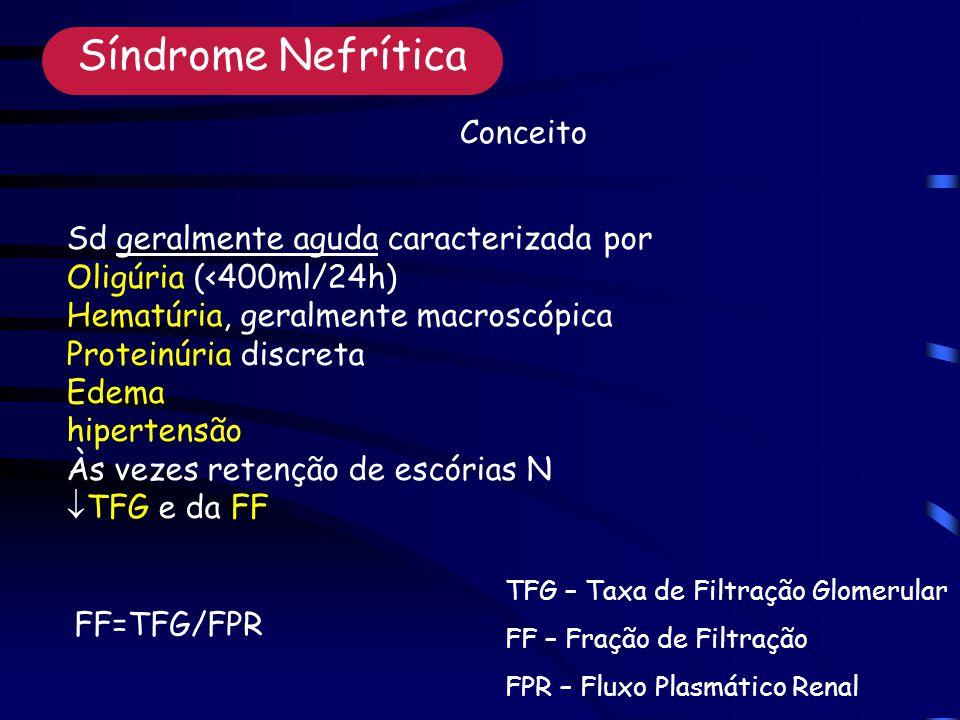 Sd geralmente aguda caracterizada por Oligúria (<400ml/24h) Hematúria, geralmente macroscópica Proteinúria discreta Edema hipertensão Às vezes retenção de escórias N TFG e da FF Síndrome Nefrítica TFG – Taxa de Filtração Glomerular FF – Fração de Filtração FPR – Fluxo Plasmático Renal FF=TFG/FPR Conceito